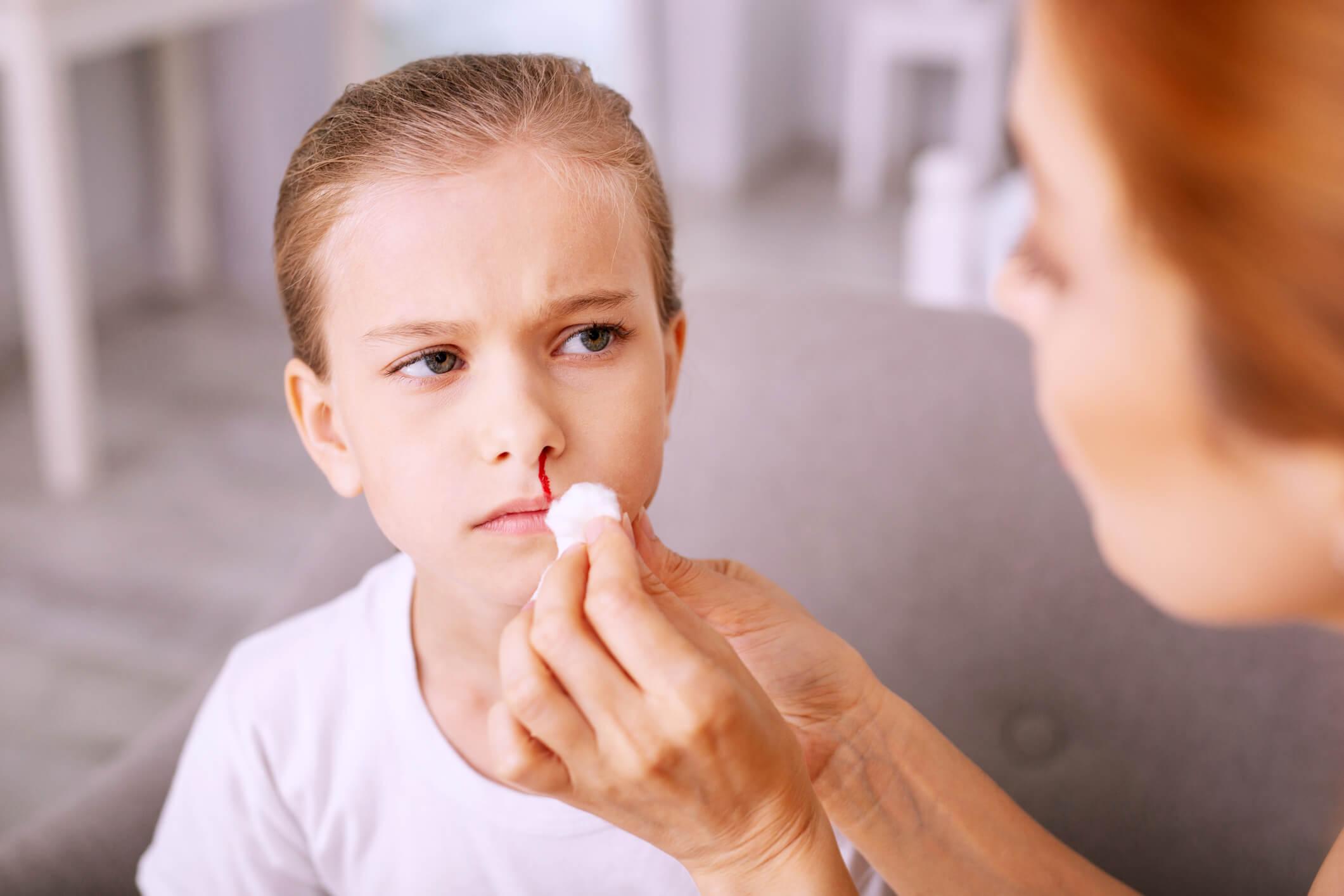 sangramento nasal